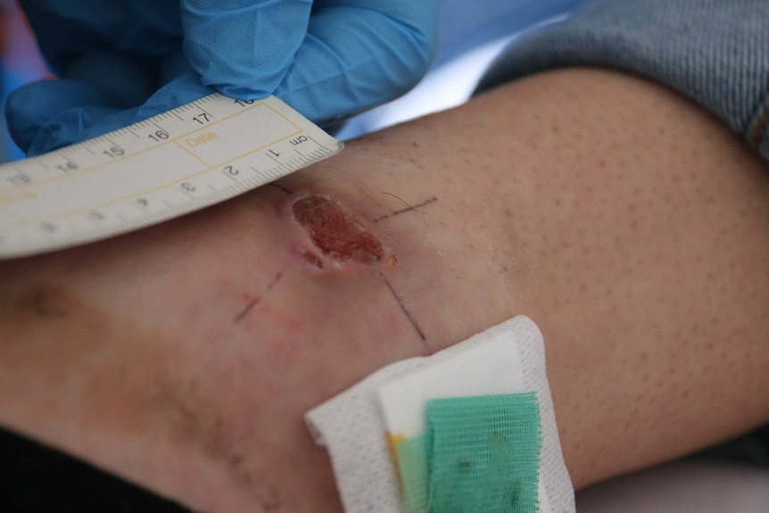 A tape measure next to a Buruli ulcer on a woman's ankle.