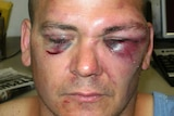 Victim of Matthew John Horner who took offence at criticism over his chicken parmigiana and broke his eye sockets in Bunbury Regional Prison