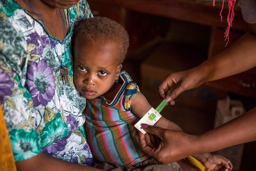 A boy receiving medical treatment for malnutrition in Ethiopia