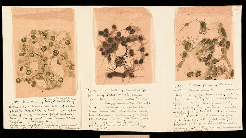 Three watercolour drawings of rounded particles on yellowing paper.