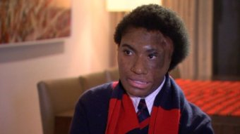 Emai Owen wears her school uniform and scarf. Part of her face scarred from burns.