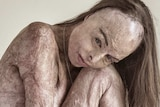Nude woman with skin covered in scarring from being burned