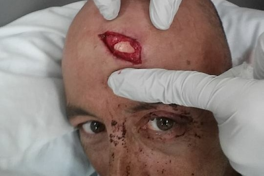 A-One Fishing Charter skipper Oliver Galea suffered a major gash to his head when a whale hit their chartered fishing boat.