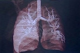 Suffering: lungs can become inflammed and scarred from disease