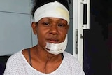 A young Papua New Guinean woman with a bandaged head, face and thigh