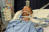 A man lying ventilated and unconscious on a hospital bed.