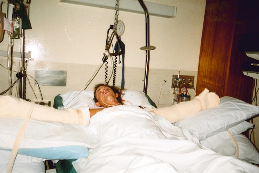 Phil Britten lying in a hospital bed with his arms bandaged and tubes up his nose after being injured in the Bali bombings