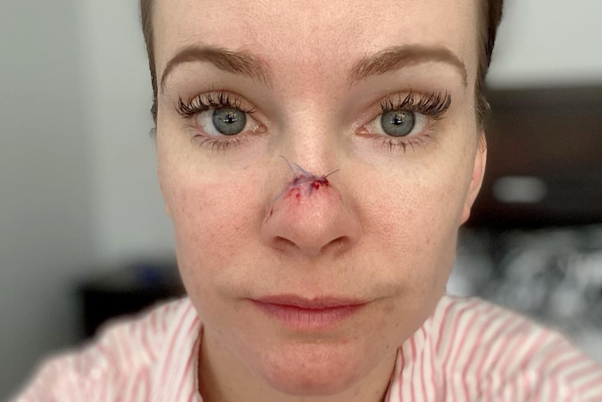 A selfie-style shot of a woman who has had surgery on the tip of her nose.