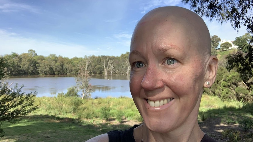 Jo Woods stands smiling in front of green trees and a river. She has grey eyes and a bald head.