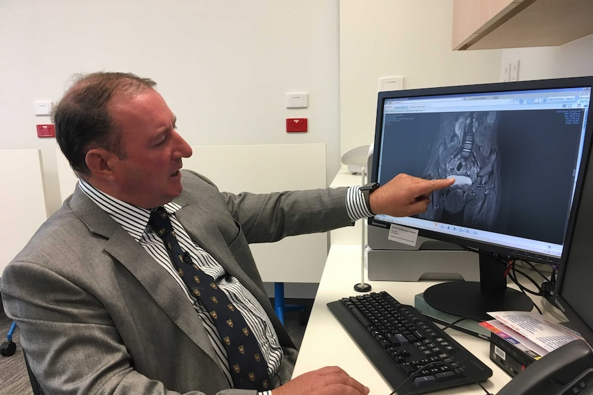 Professor Chris Kimber points at an X-Ray of a girl's pelvis on his computer monitor.