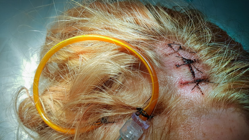 Top of a woman's head taken after brain surgery with a tube coming out of wound with stiches.
