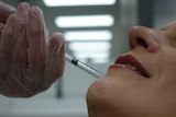A woman receiving cosmetic lip filler injections