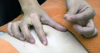 Therapist inserting a fourth acupuncture needle into a person's abdomen.