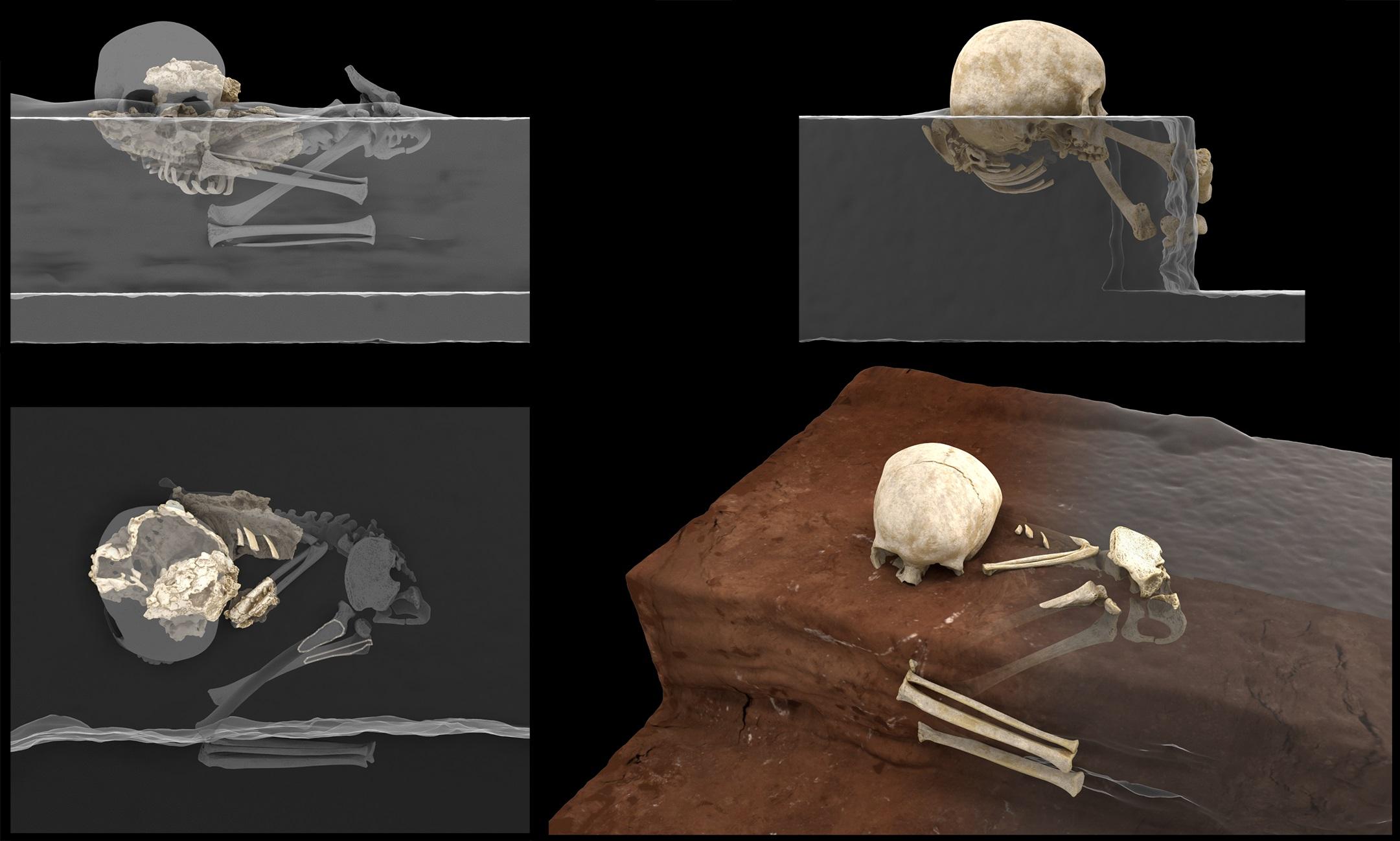 Digital images of a child's skeleton