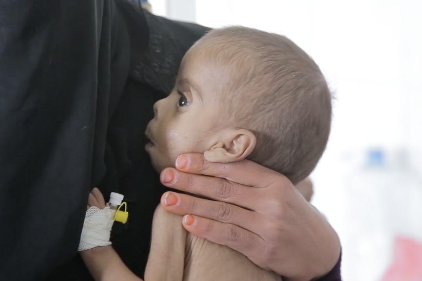 Baby in a feeding clinic in Yemen