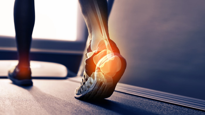 Male legs on treadmill with ankle joint glowing like an X-ray image in colour