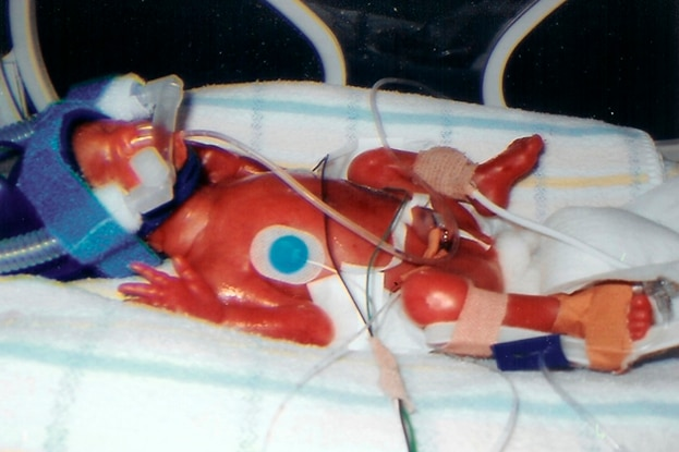 A premature baby in a hospital crib for a story on bringing a premature baby home.