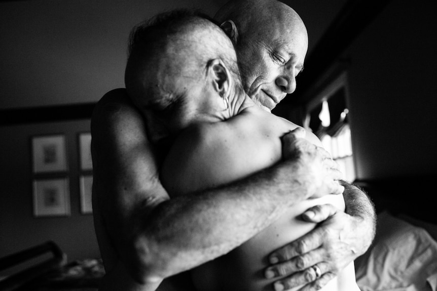 Laurel and Howie Borowick, both bald and shirtless, embrace.