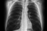 Black lung disease