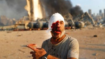 An injured man walks at the explosion scene that hit the seaport, in Beirut Lebanon.