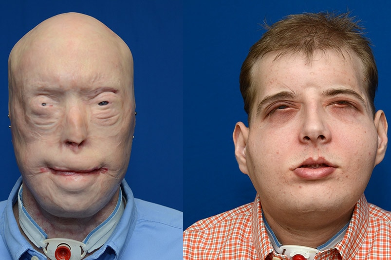 Patrick Hardison before facial surgery (left) and nearly three months after the surgery in November 2015.