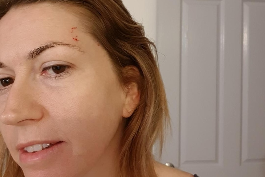 Close-up indoor selfie of a woman showing a bitemark on the her left side of her forehead.