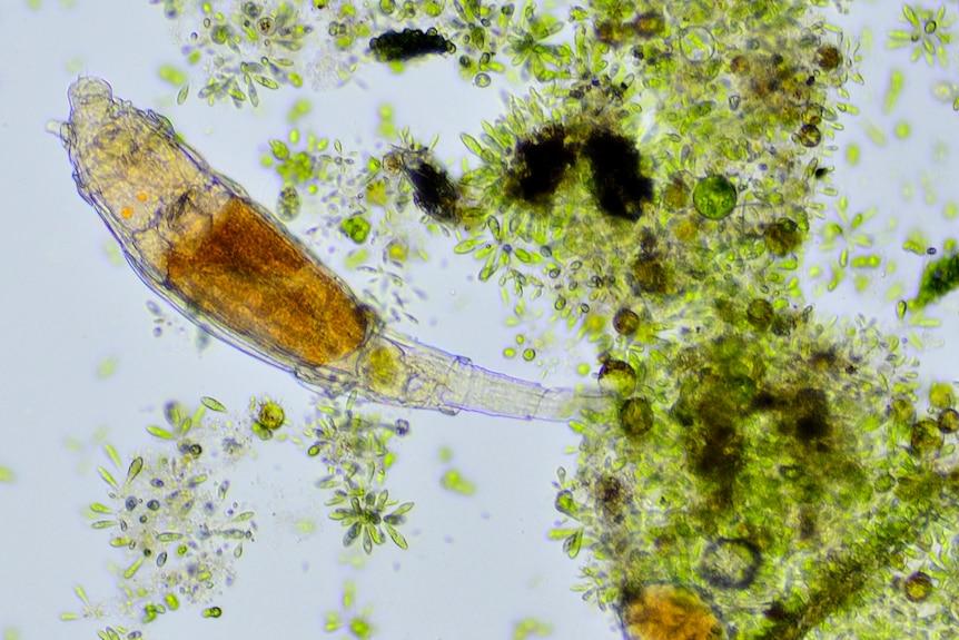 Bdelloid rotifer with algae