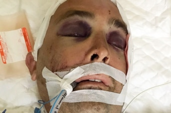 Ben French lies in a hospital bed with a bandage on his head and a tube going into his mouth.
